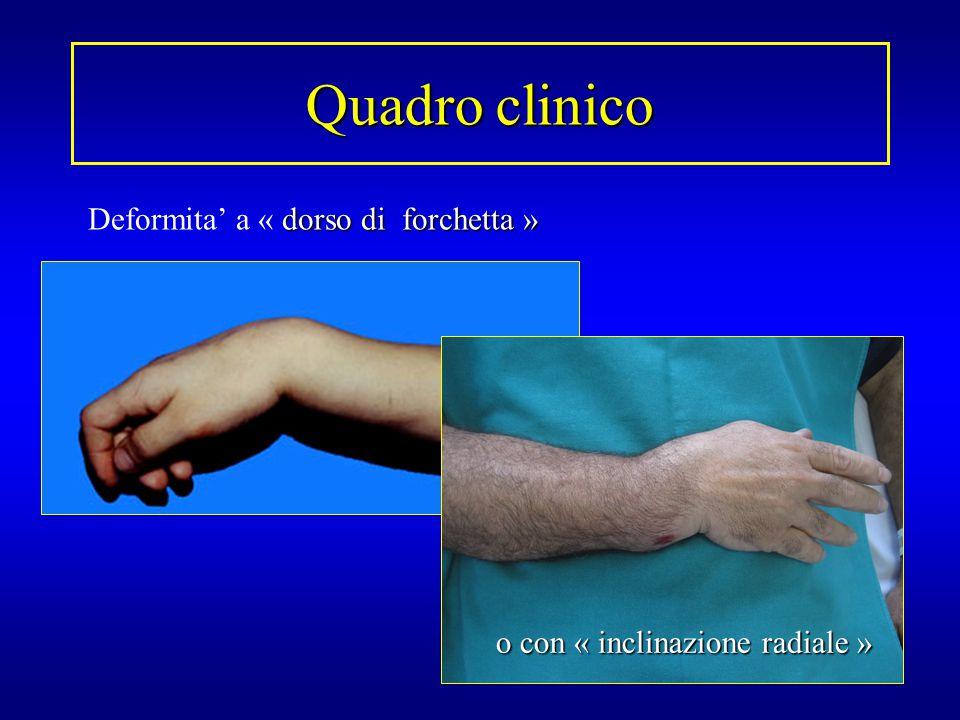 Quadro clinico Deformita' a « dorso di forchetta »