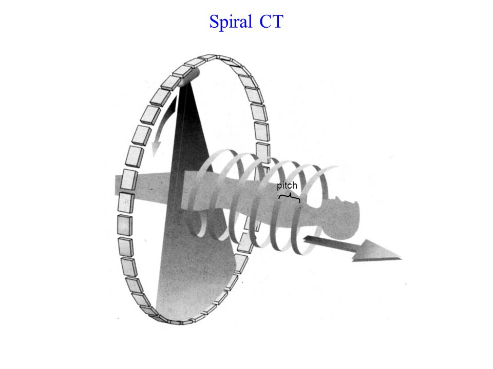 Spiral CT Continuous linear motion of patient table during multiple scans. Increased coverage volume / rotation.