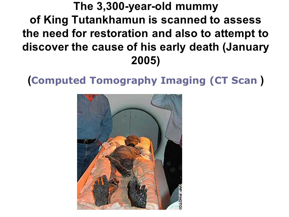 The 3,300-year-old mummy of King Tutankhamun is scanned to assess the need for restoration and also to attempt to discover the cause of his early death (January 2005) (Computed Tomography Imaging (CT Scan )