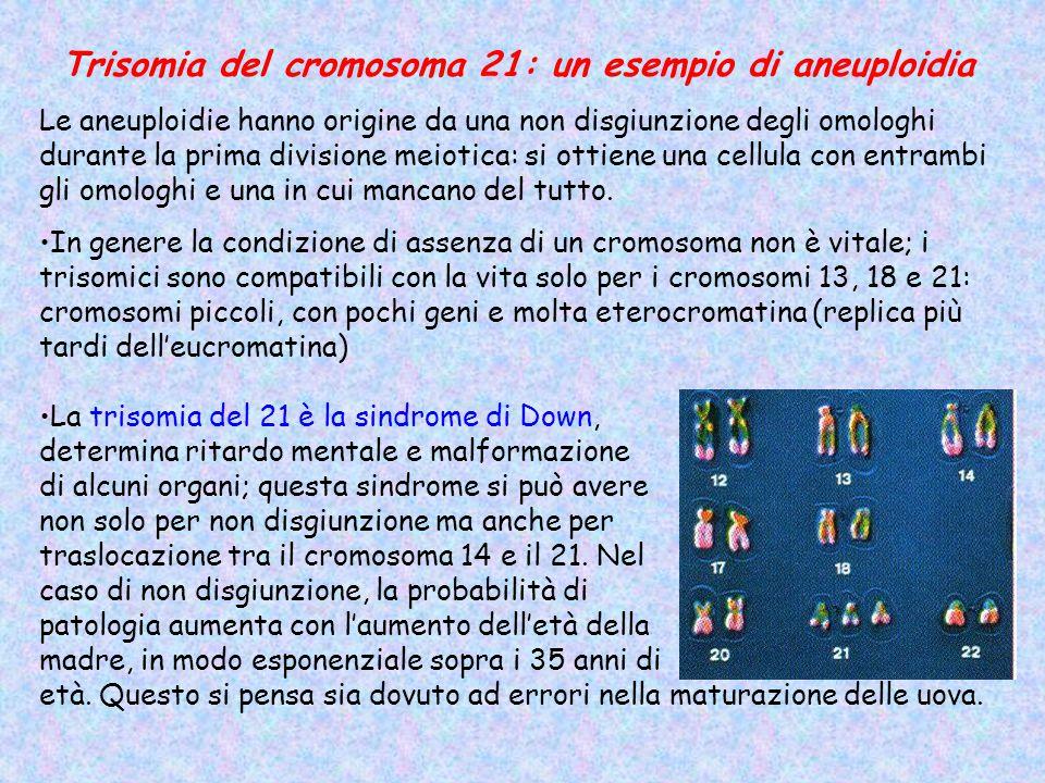 Trisomia del cromosoma 21: un esempio di aneuploidia