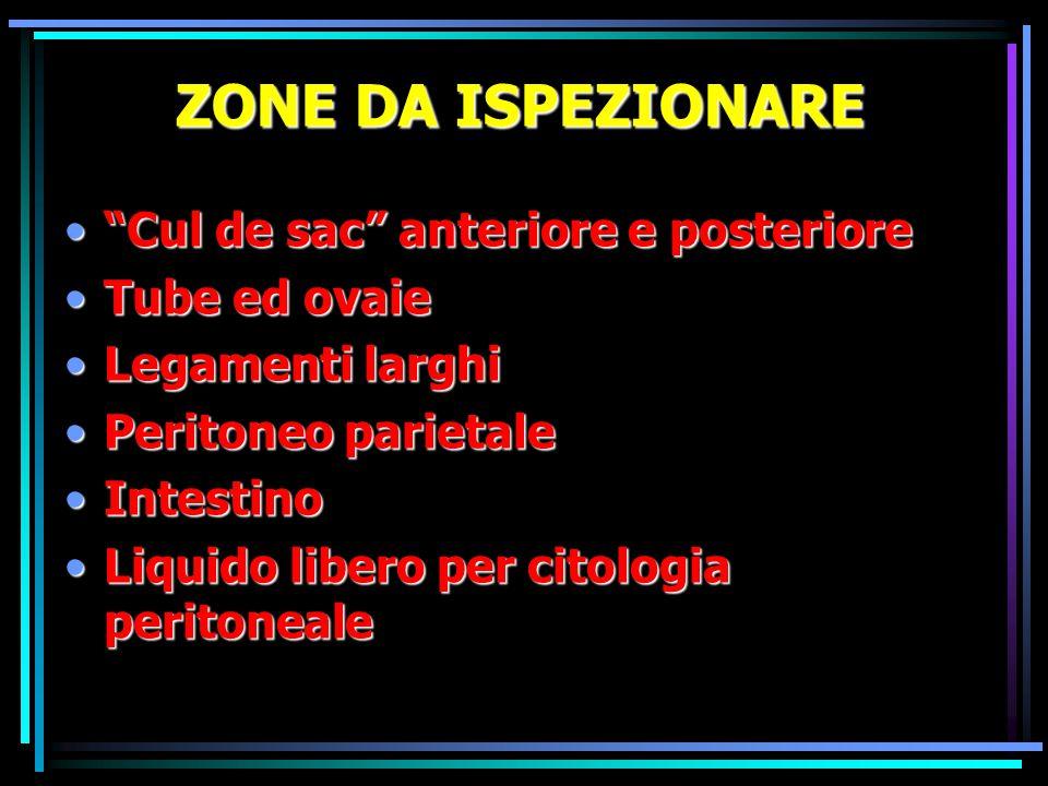 ZONE DA ISPEZIONARE Cul de sac anteriore e posteriore Tube ed ovaie
