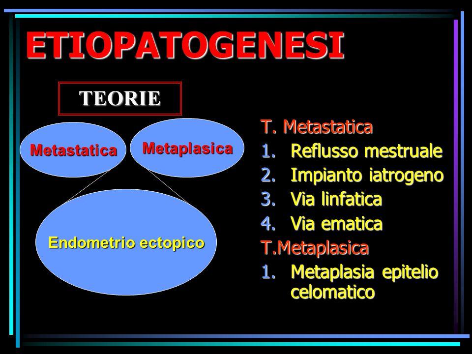 ETIOPATOGENESI TEORIE T. Metastatica Reflusso mestruale