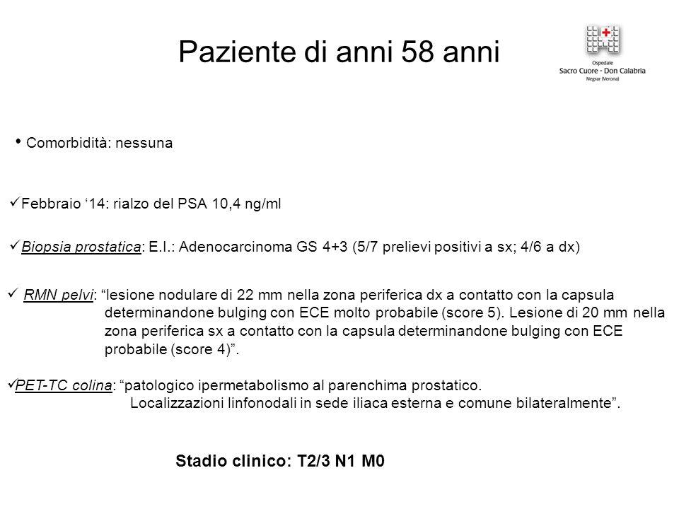 Paziente di anni 58 anni Comorbidità: nessuna