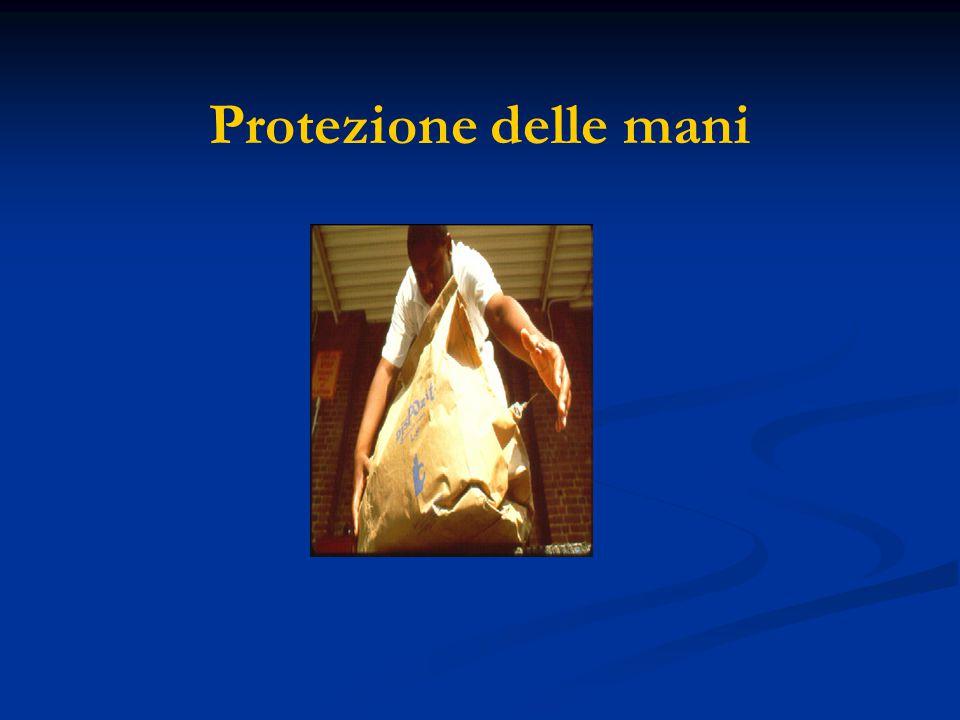 Protezione delle mani