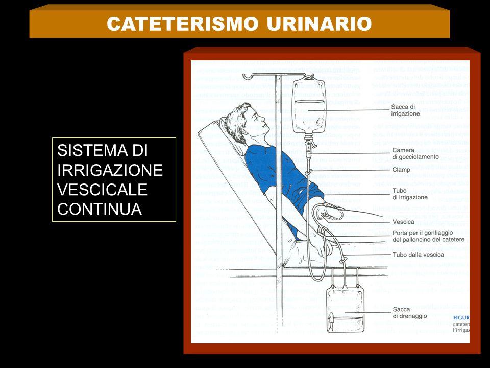 CATETERISMO URINARIO SISTEMA DI IRRIGAZIONE VESCICALE CONTINUA