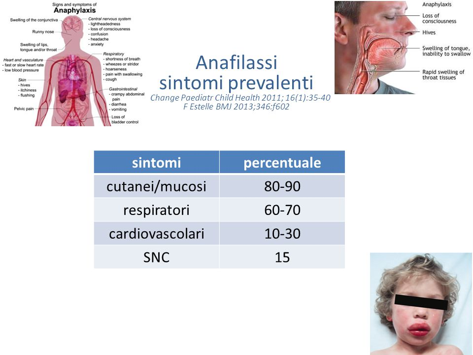 Anafilassi sintomi prevalenti A Change Paediatr Child Health 2011; 16(1):35-40 F Estelle BMJ 2013;346:f602