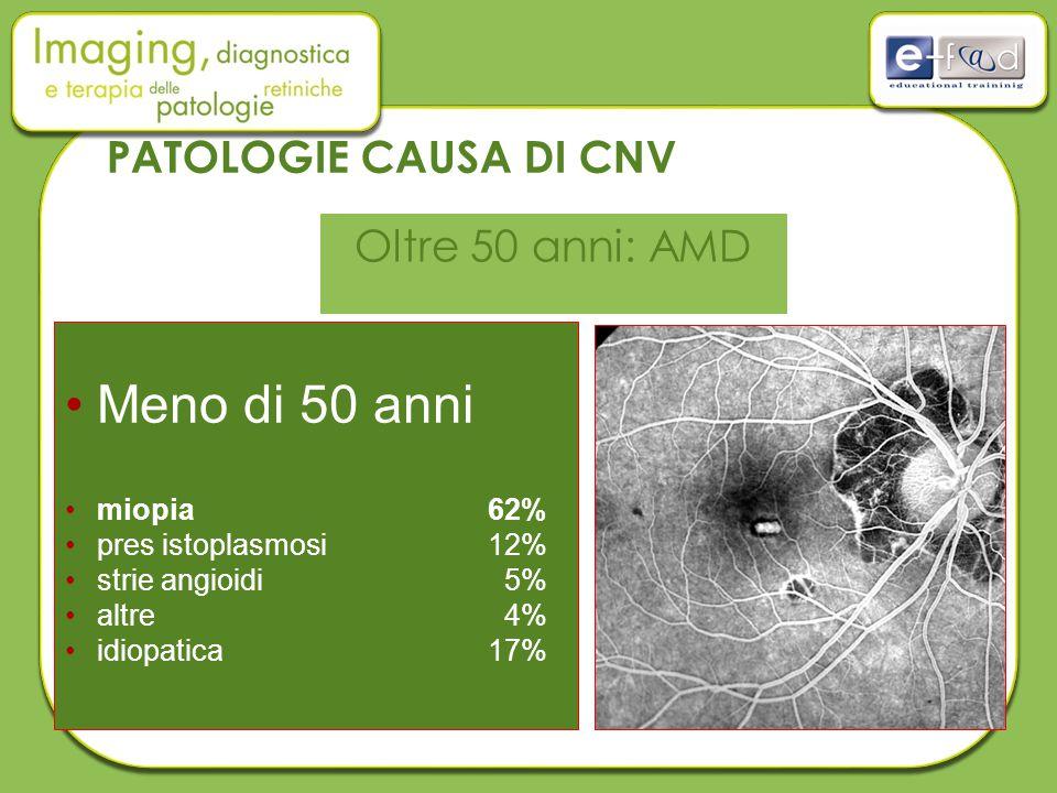 Meno di 50 anni PATOLOGIE CAUSA DI CNV Oltre 50 anni: AMD miopia 62%