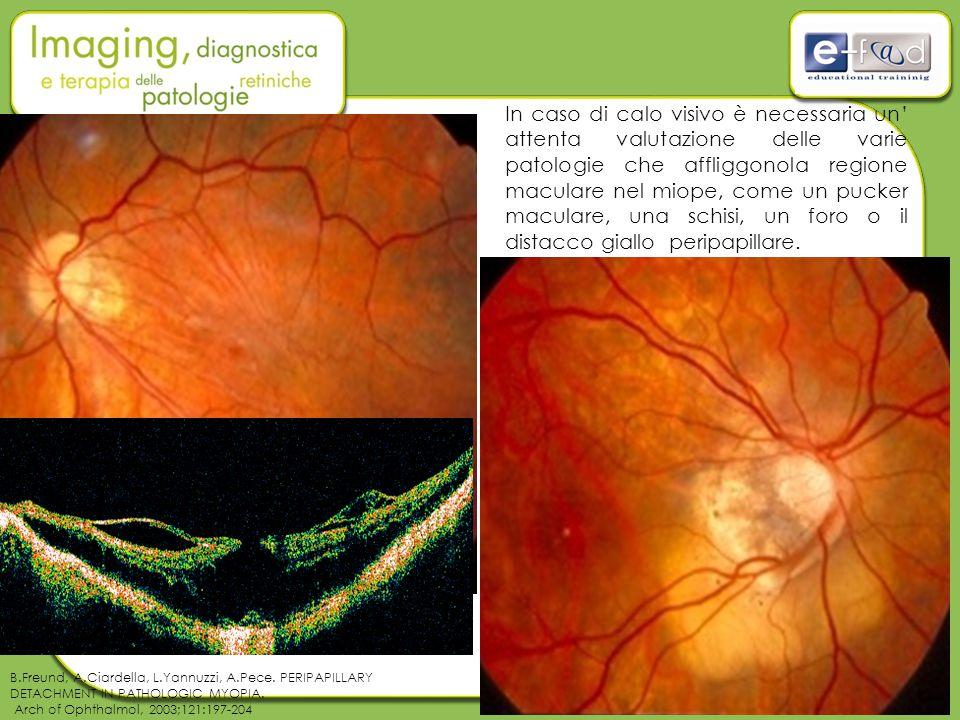In caso di calo visivo è necessaria un' attenta valutazione delle varie patologie che affliggonola regione maculare nel miope, come un pucker maculare, una schisi, un foro o il distacco giallo peripapillare.