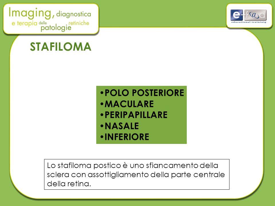 STAFILOMA POLO POSTERIORE MACULARE PERIPAPILLARE NASALE INFERIORE