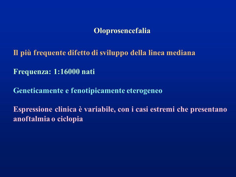 Oloprosencefalia Il più frequente difetto di sviluppo della linea mediana. Frequenza: 1:16000 nati.