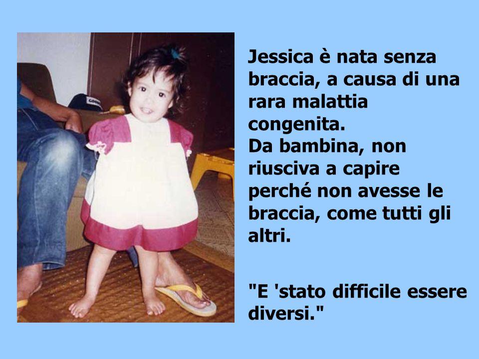 Jessica è nata senza braccia, a causa di una rara malattia congenita