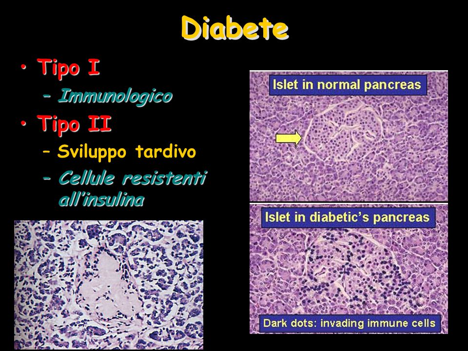 Diabete Tipo I Tipo II Immunologico Sviluppo tardivo