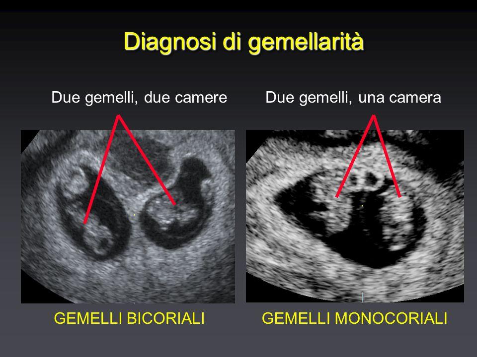 Diagnosi di gemellarità