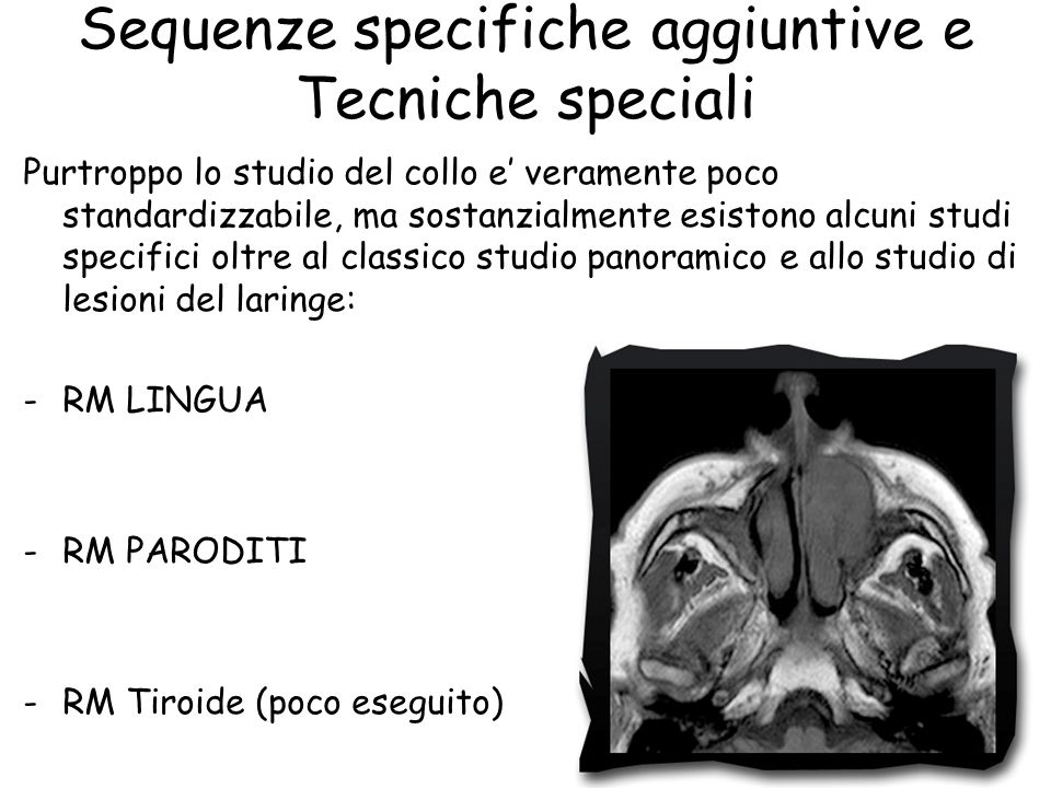 Sequenze specifiche aggiuntive e Tecniche speciali