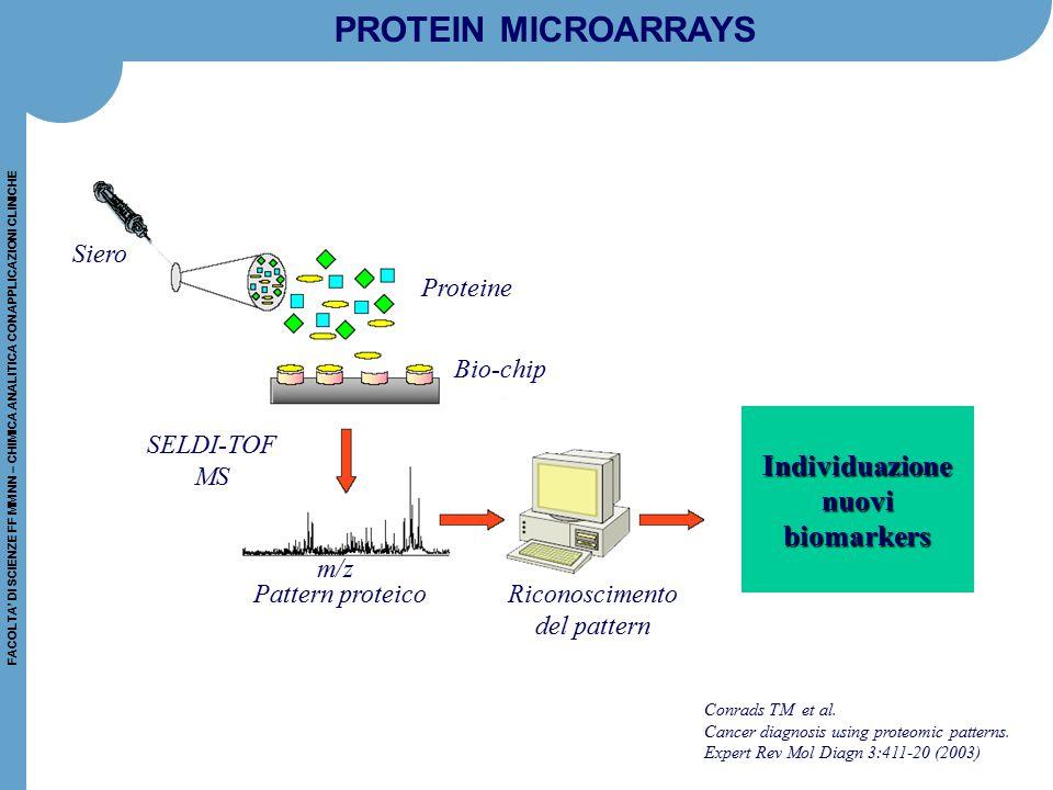 PROTEIN MICROARRAYS Individuazione nuovi biomarkers Siero Proteine