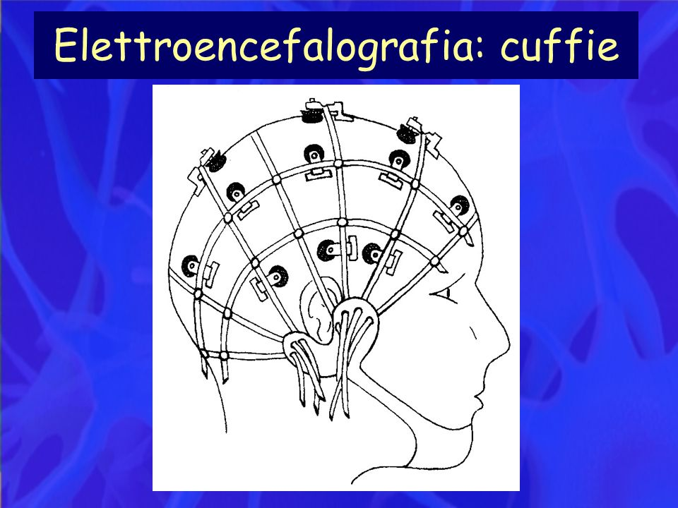 Elettroencefalografia: cuffie
