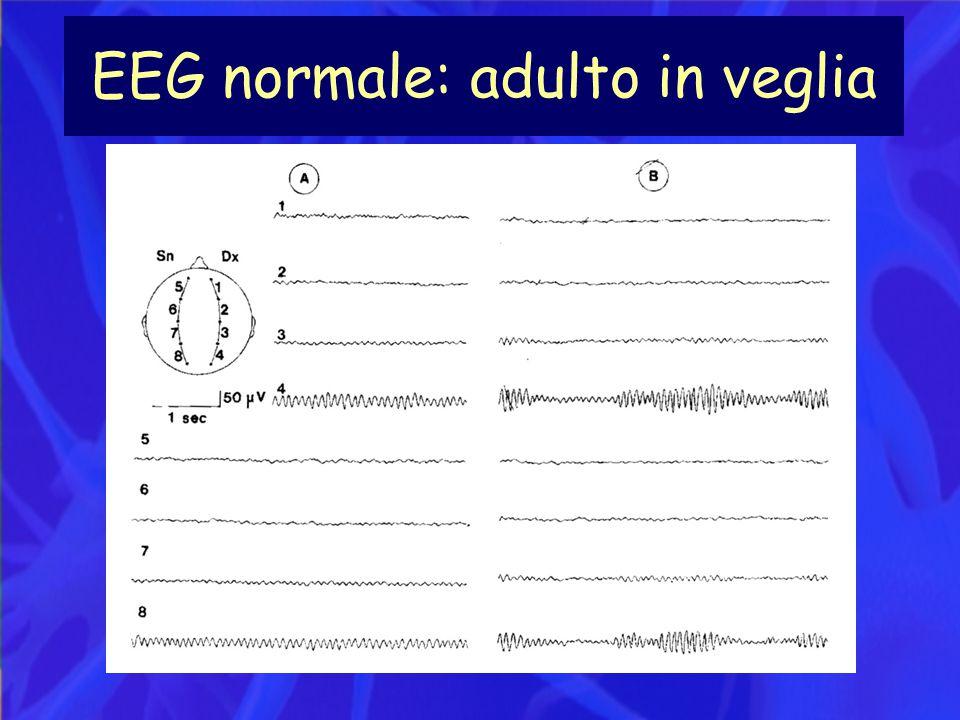 EEG normale: adulto in veglia