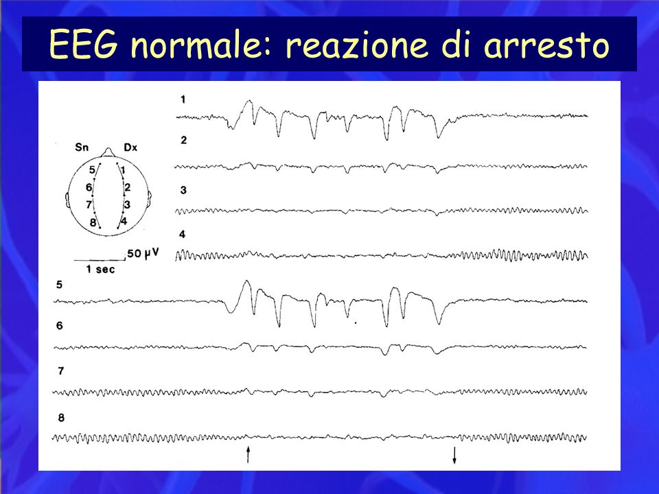 EEG normale: reazione di arresto