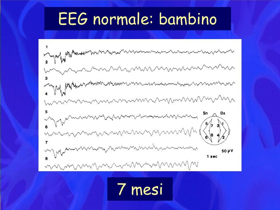 EEG normale: bambino 7 mesi