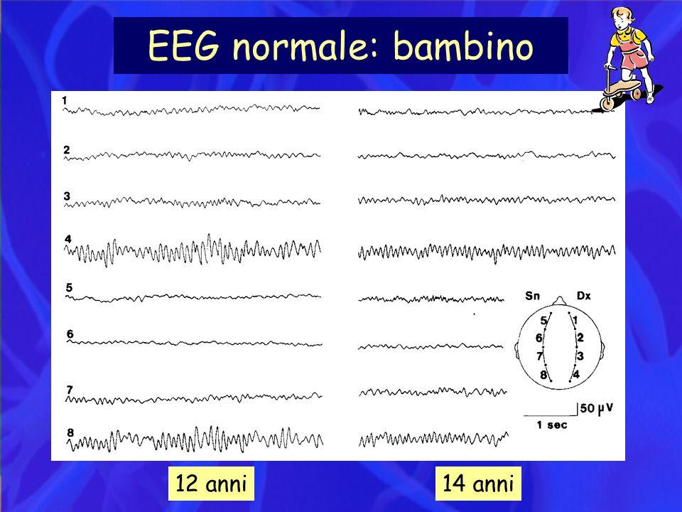 EEG normale: bambino 12 anni 14 anni