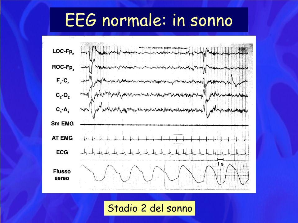 EEG normale: in sonno Stadio 2 del sonno