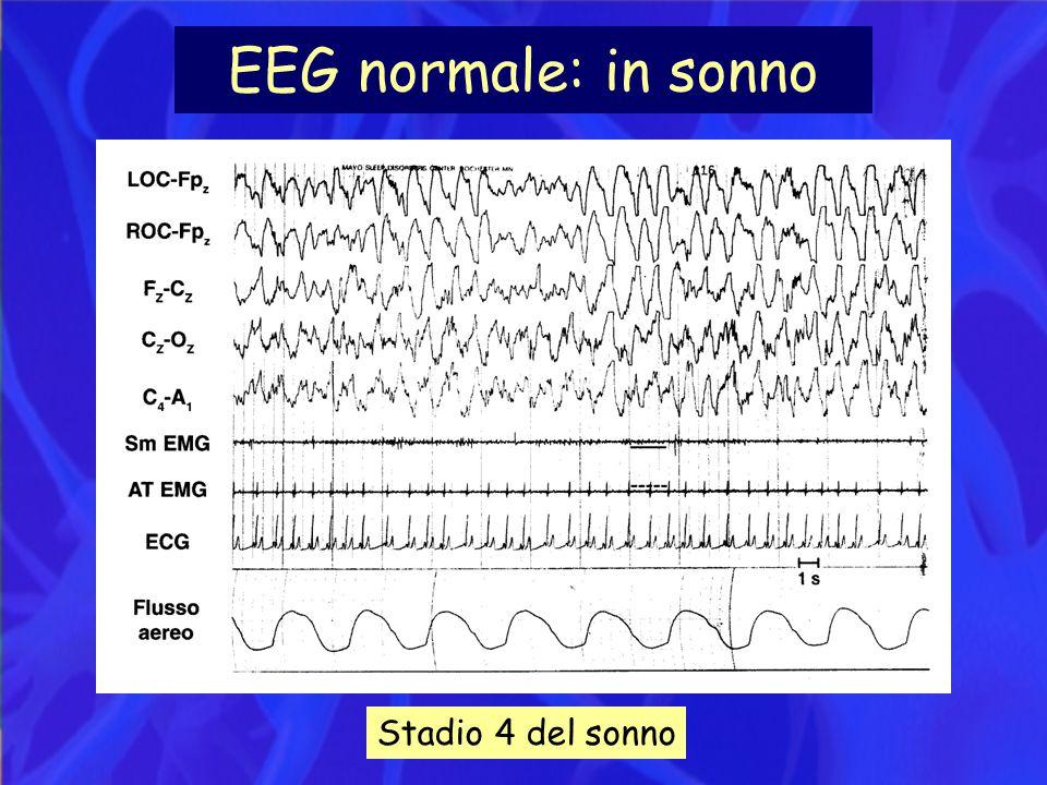 EEG normale: in sonno Stadio 4 del sonno