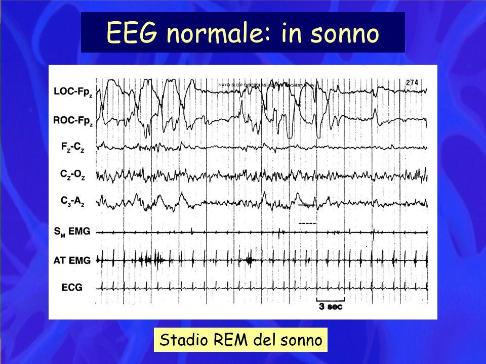 EEG normale: in sonno Stadio REM del sonno