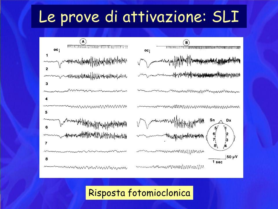 Le prove di attivazione: SLI