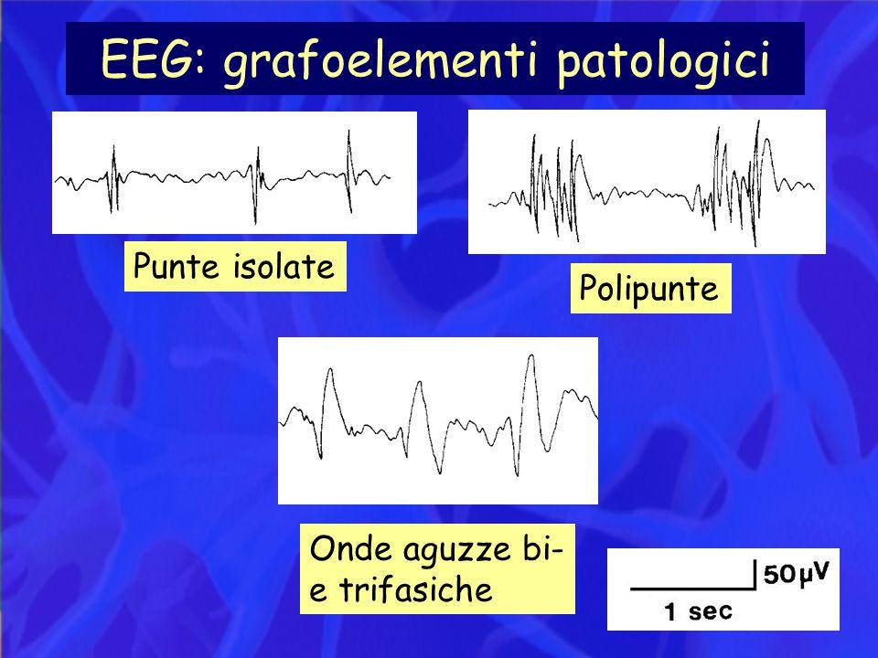 EEG: grafoelementi patologici