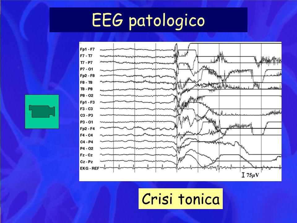 EEG patologico Crisi tonica