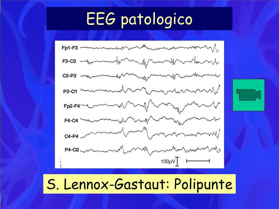 EEG patologico S. Lennox-Gastaut: Polipunte
