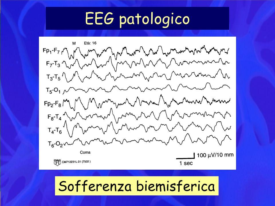 EEG patologico Sofferenza biemisferica
