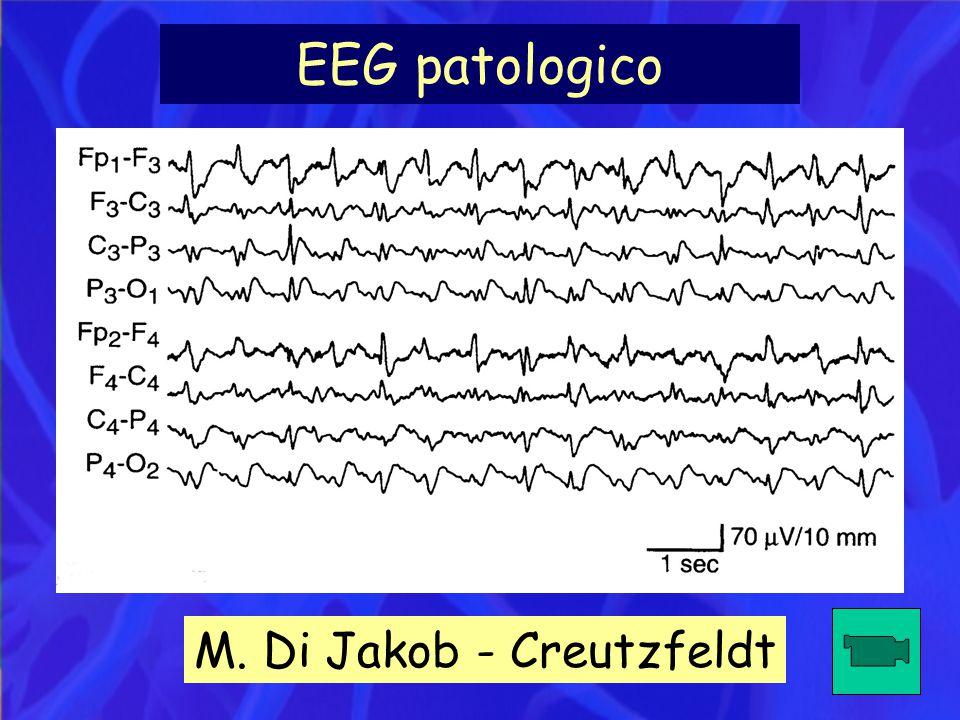 EEG patologico M. Di Jakob - Creutzfeldt