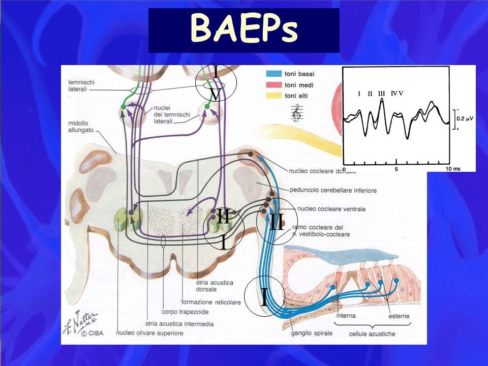 BAEPs IV II III I
