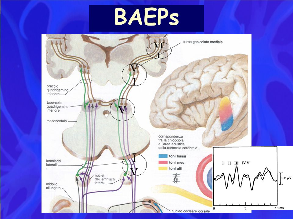 BAEPs VII VI V IV