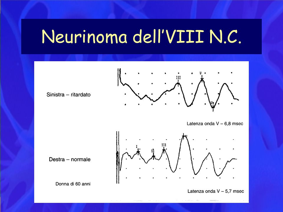 Neurinoma dell'VIII N.C.