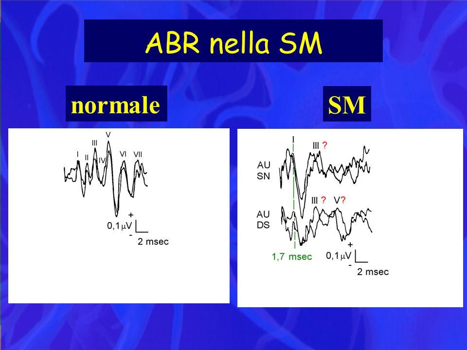 ABR nella SM normale SM