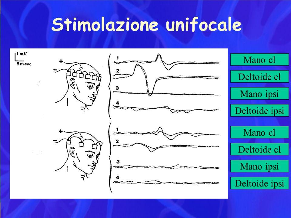 Stimolazione unifocale