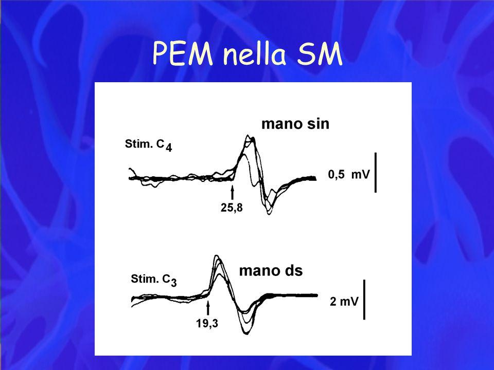 PEM nella SM