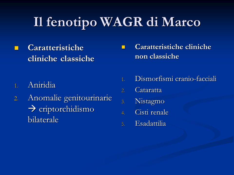 Il fenotipo WAGR di Marco