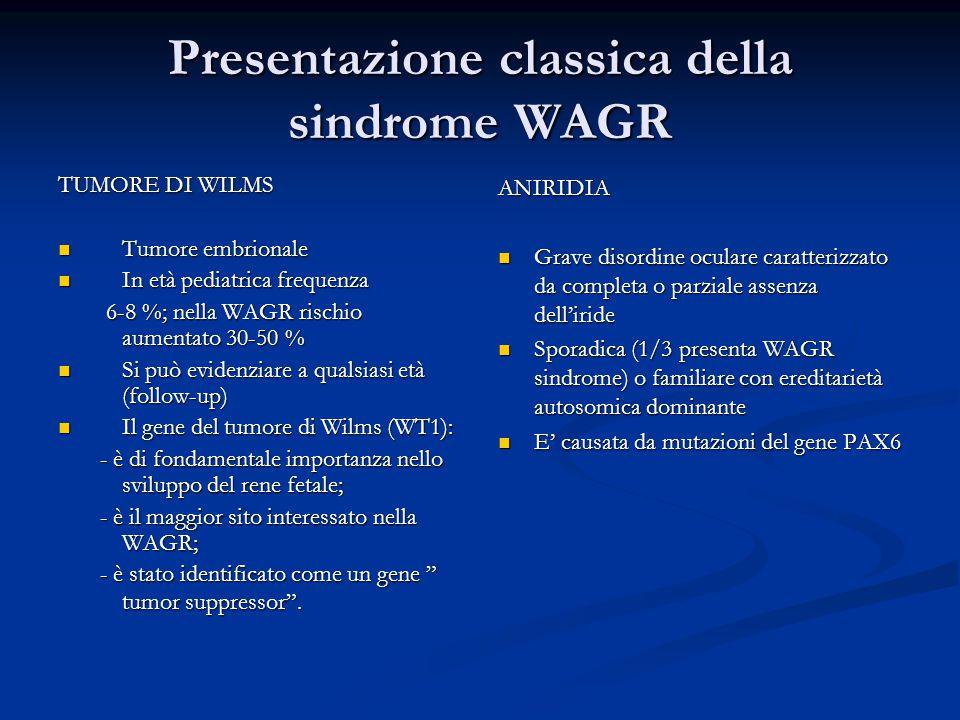 Presentazione classica della sindrome WAGR