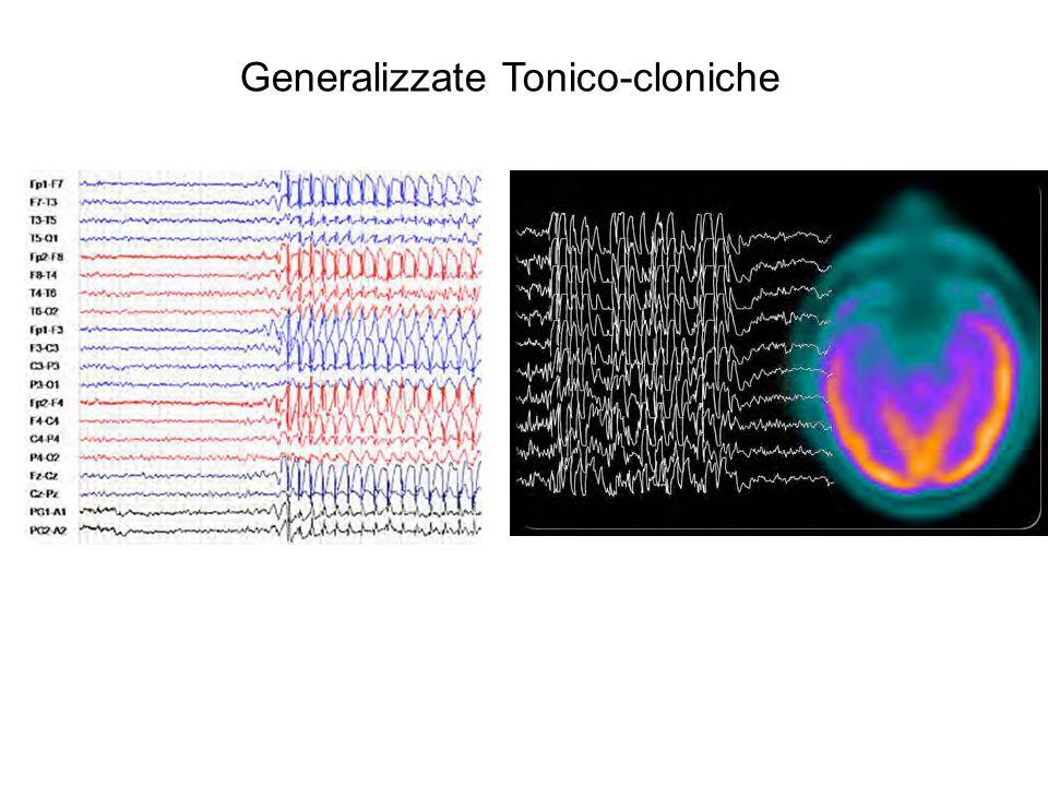 Generalizzate Tonico-cloniche