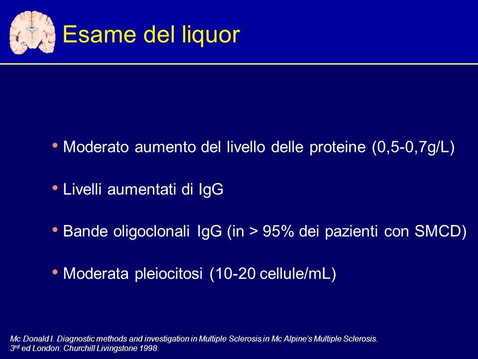 Esame del liquor Moderato aumento del livello delle proteine (0,5-0,7g/L) Livelli aumentati di IgG.