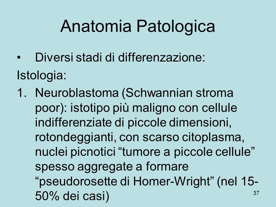 Anatomia Patologica Diversi stadi di differenzazione: Istologia: