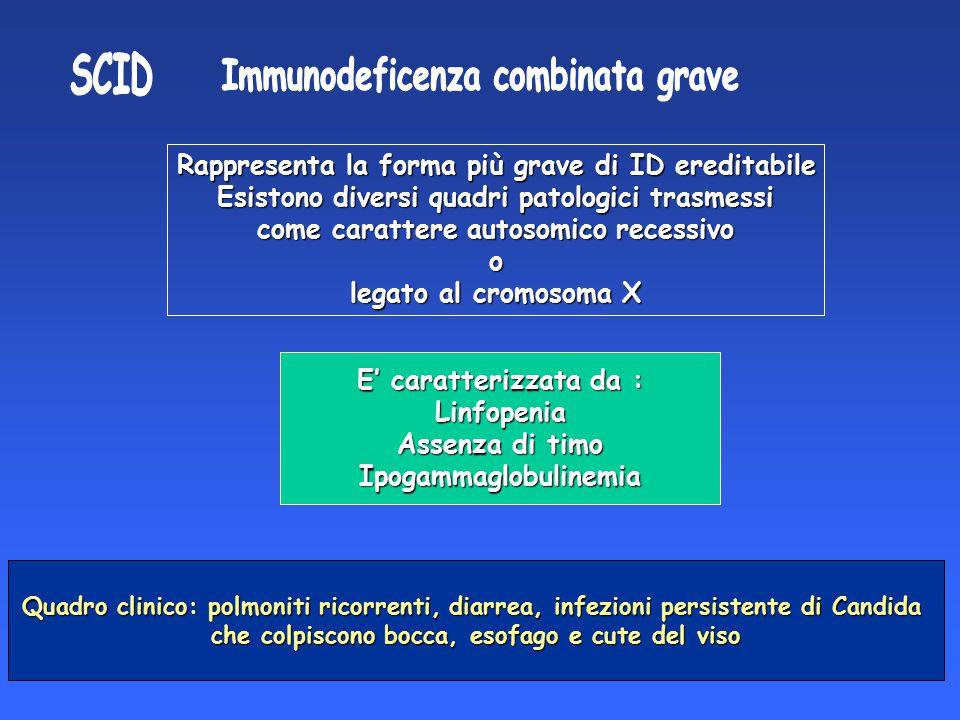 SCID Immunodeficenza combinata grave