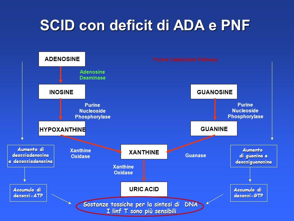 SCID con deficit di ADA e PNF
