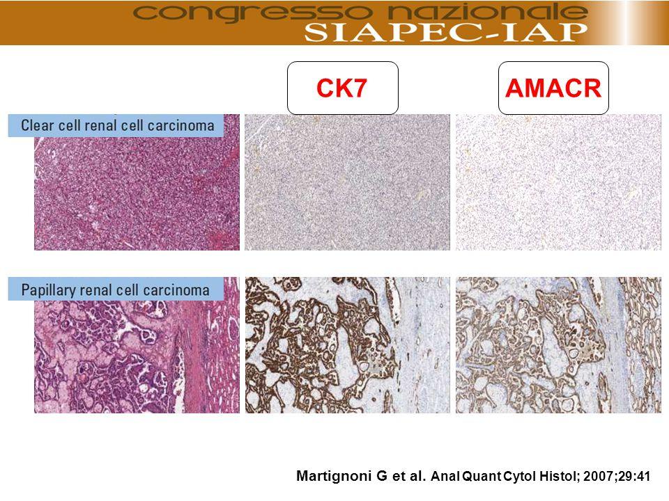 CK7 AMACR Martignoni G et al. Anal Quant Cytol Histol; 2007;29:41