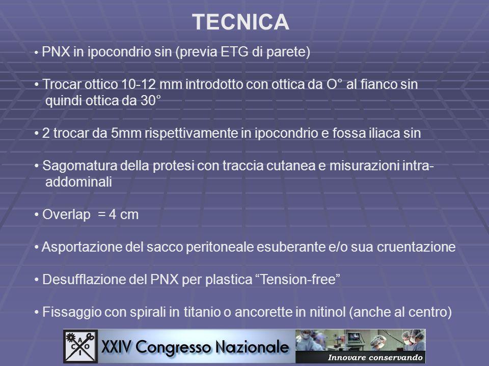 TECNICA PNX in ipocondrio sin (previa ETG di parete) Trocar ottico 10-12 mm introdotto con ottica da O° al fianco sin.