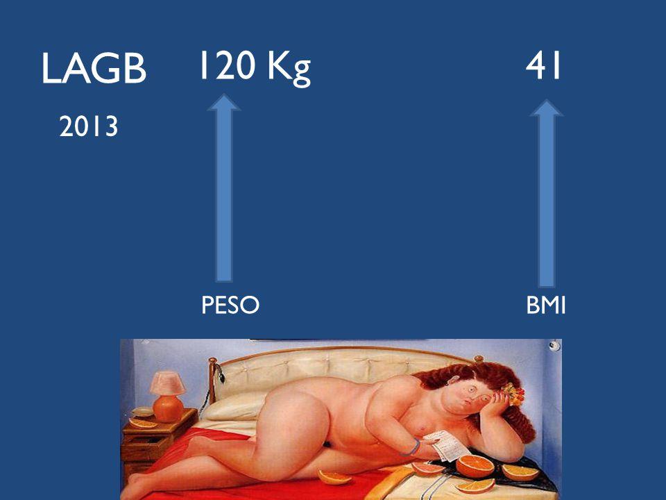 LAGB 120 Kg 41 PESO BMI 2013