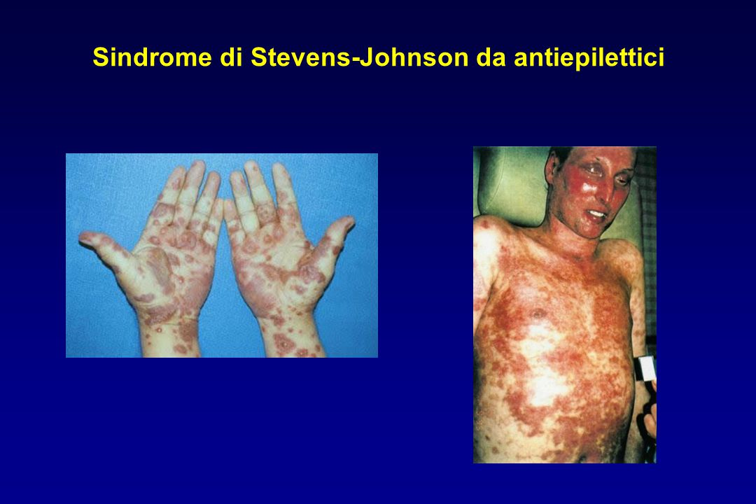 Sindrome di Stevens-Johnson da antiepilettici